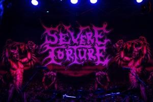 Severe Torture - 1